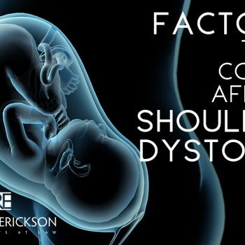 Factors that could affect shoulder dystocia